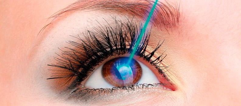 f800cdd7e Cirurgia Refrativa (Miopia, Hipermetropia e Astigmatismo) - Centro ...